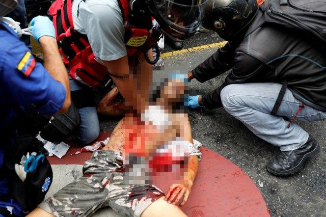 El joven habría recibido el impacto de una lacrimógena. Foto: Reuters
