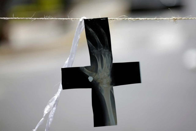 A cross made of an X-ray hangs on a street barricade after a strike called to protest against Venezuelan President Nicolas Maduro's government in Caracas, Venezuela, July 29, 2017. REUTERS/Ueslei Marcelino