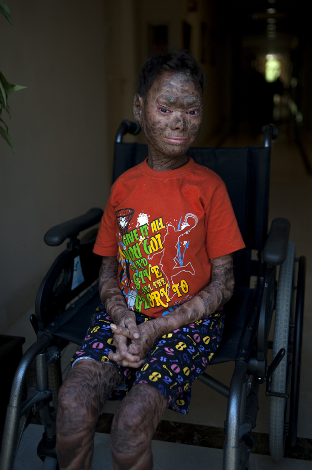 """Shalini Yadav, 16, known as the """"snake girl"""" poses in Marbella on September 15, 2017.  Shalini, who suffers recessive lamellar ichthyosis and sheds her skin every six weeks due to a rare condition, is to get life-improving treatment in southern Spain. / AFP PHOTO / JORGE GUERRERO"""