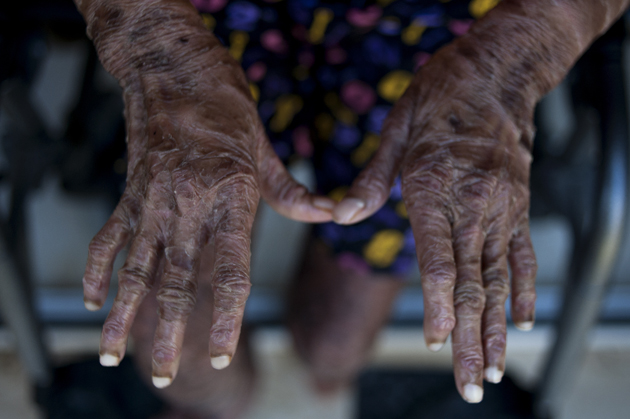 """The hands of Shalini Yadav, 16, known as the """"snake girl"""" are pictured in Marbella on September 15, 2017.  Shalini, who suffers recessive lamellar ichthyosis and sheds her skin every six weeks due to a rare condition, is to get life-improving treatment in southern Spain. / AFP PHOTO / JORGE GUERRERO"""