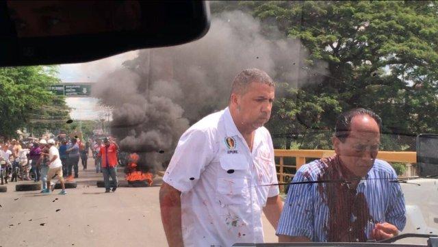 El candidato a la gobernación de Apure, José Gegorio Montilla fue herido en la cabeza por una pedrada / Foto: @hramosallup
