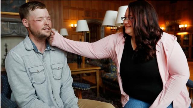 Lilly Ross acaricia el rostro trasplantado de Andy Sandness (AP)
