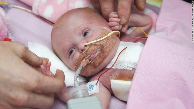Three-week-old Vanellope Hope Wilkins, who was due to be delivered on Christmas Eve before an incredibly rare condition, in which the heart grows on the outside of the body, meant she had to be born prematurely by caesarean section on November 22, is caressed and touched by her parents Naomi Findlay and Dean Wilkins, at Glenfield Hospital in Leicester, after surviving, in what is believed to be a UK first. (Photo by Ben Birchall/PA Images via Getty Images)