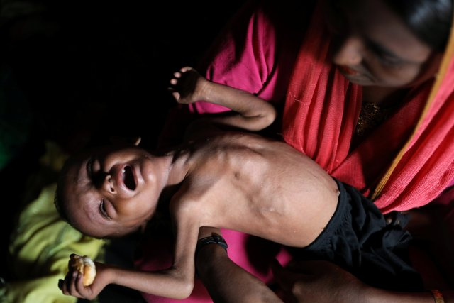 A Rohingya child cries on his mother's lap while suffering from severe malnutrition in the Balukhali camp in Cox's Bazar, Bangladesh October 5, 2017. Picture taken REUTERS/Mohammad Ponir Hossain