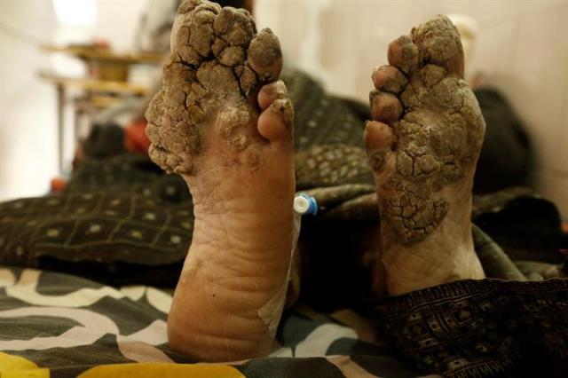 Abul Bajandar, conocido como 'hombre árbol', descansa en una habitación de la unidad de quemados del hospital, en Daca, Bangladés, hoy, 30 de enero de 2018. Bajandar, quien permanecerá dos años en el hospital, ha sido sometido a 19 operaciones para eliminar las verrugas de sus extremidades. EFE/ Abir Abdullah