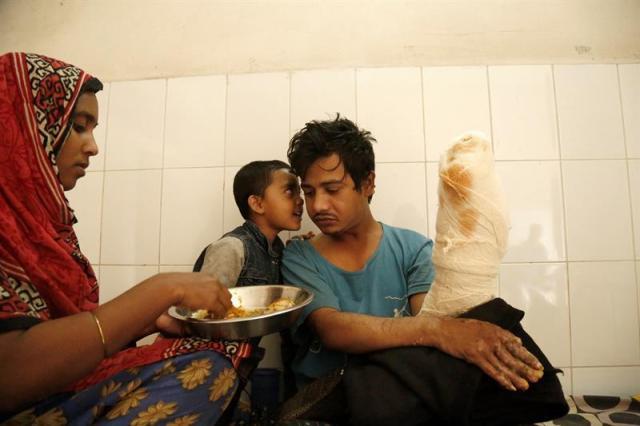 Abul Bajandar (dcha), conocido como 'hombre árbol', recibe comida de manos de su esposa, Halima Akter en una habitación de la unidad de quemados del hospital, en Daca, Bangladés, hoy, 30 de enero de 2018. Bajandar, quien permanecerá dos años en el hospital, ha sido sometido a 19 operaciones para eliminar las verrugas de sus extremidades. EFE/ Abir Abdullah
