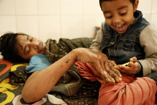 Abul Bajandar (izda), conocido como 'hombre árbol', juega con su hija, Jannatul Ferdous Tahira(dcha), en una habitación de la unidad de quemados del hospital, en Daca, Bangladés, hoy, 30 de enero de 2018. Bajandar, quien permanecerá dos años en el hospital, ha sido sometido a 19 operaciones para eliminar las verrugas de sus extremidades. EFE/ Abir Abdullah