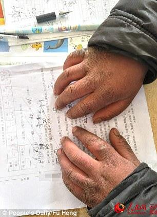 nino chino manos