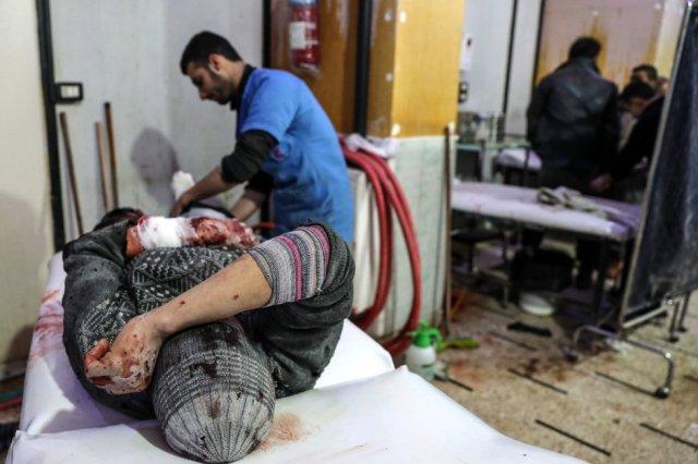 Un hombre herido tras un bombardeo al este de Guta es atendido en un hospital de Duma (Siria), el 20 de febrero de 2018. Como en el resto de cercos del país, a la falta de alimentos se suman unos servicios sanitarios casi inexistentes, fruto de los ataques aéreos contra instalaciones médicas y la alarmante escasez de medicamentos. (Foto: MOHAMMED BADRA / EFE)