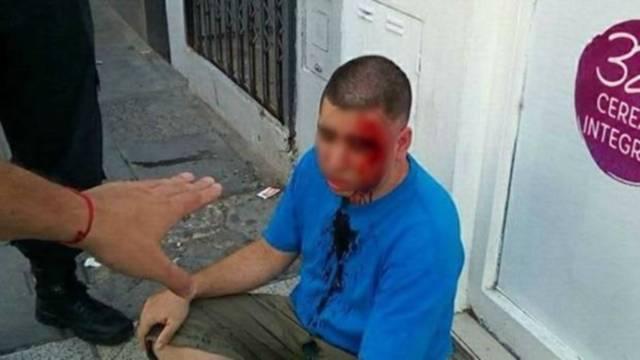Hombre golpeado tras encontronazo con padre de la niña que acosaba. Foto cortesía Clarín.