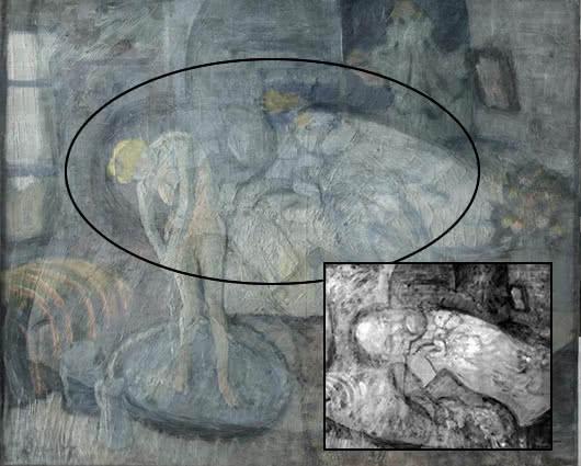 El resultado inicial del exámen con rayos X muestra la cabeza del hombre sobre la mujer. Foto: NoticiasRCN.com/EFE