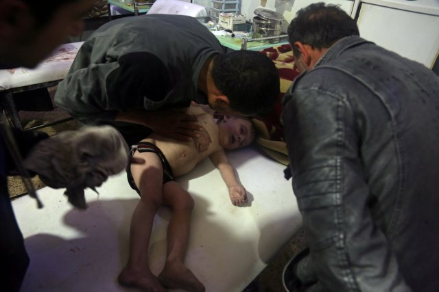A child is treated in a hospital in Douma, eastern Ghouta in Syria, after what a Syria medical relief group claims was a suspected chemical attack April, 7, 2018.  Pcture taken April 7, 2018.   White Helmets/Handout via REUTERS   ATTENTION EDITORS - THIS PICTURE WAS PROVIDED BY A THIRD PARTY. REUTERS IN UNABLE TO VERIFY THE AUTHENTICITY, CONTENT, LOCATION OF THIS IMAGE.  NO RESALES. NO ARCHIVES.