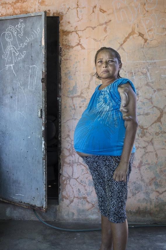 Laura Delgado dijo que ella está en la lista de espera para un trasplante de riñón y sufre retención de líquidos como resultado de su dolencia. FOTO: OSCAR B. CASTILLO / WALL STREET JOURNAL