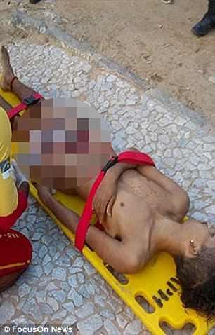 Foto: Muere brasilero luego que un tiburón le arrancara el pene en un horrible ataque / dailymail.co.uk