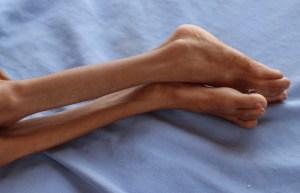 ONU admite que está perdiendo la lucha contra la hambruna en Yemen (Imágenes Sensibles)