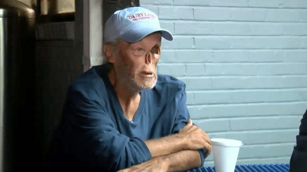 """Obligan a un enfermo de cáncer a salir de una cafetería """"porque su rostro asustaba a los clientes"""""""