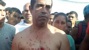 Por negarse a ser reubicados, reprimen violentamente a pescaderos del Mercado de Chirica #9Nov