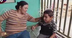 La entristecedora historia de un niño en el Zulia que pierde el cabello por la falta de luz (VIDEO)
