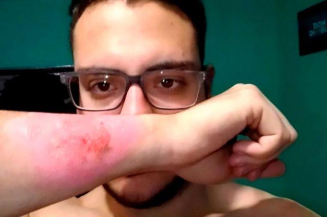 El hombre se quitó el tatuaje en 2017 (Imagen: CEN / @ _ Matycosta)