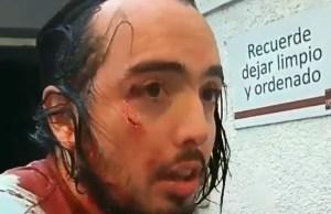 Venezolano intentó detener a saqueadores en Chile y resultó herido (Video)