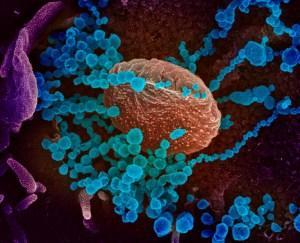 EEUU asume que el coronavirus se propagará por el país y pide prepararse