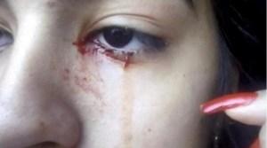 El extraño caso de una joven que llora sangre desde hace una semana