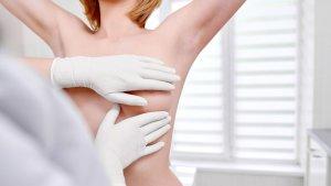 Comisión Especial de la AN llamó a la prevención del cáncer de mama con el autoexamen