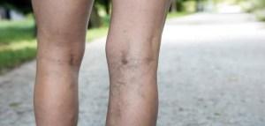 Al menos 50% de los venezolanos tiene insuficiencia venosa superficial