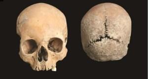 Descubren el ESPANTOSO castigo que sufría un condenado antes de morir en la antigua Inglaterra