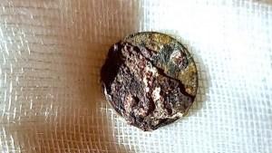 Grabaron cómo le extrajeron una moneda que se introdujo en la nariz hace 53 años (Video)