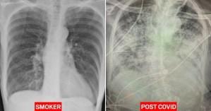 Radiografía revela que los pulmones de infectados con Covid-19 se ven peor que los de un fumador