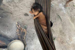 Ocho años y 12 kilos: La niña que es símbolo del abandono de los yanomami en Brasil
