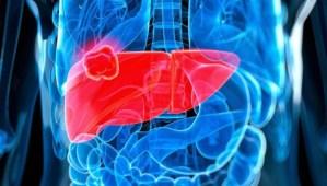 Por qué los médicos dicen que hay que prestarle más atención al hígado graso