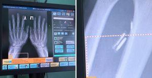 """Médico ruso se implantó cinco microchips en las manos para hacer su vida """"más fácil"""" (video)"""