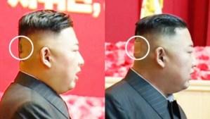 Mancha verdosa en la cabeza de Kim Jong Un alimenta especulaciones sobre su salud