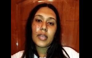 VIDEO: La dejaron con el cachete morado tras jornada violenta del Psuv en Lara