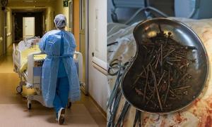 Extrajeron más de un kilo de clavos y tornillos del estómago de un hombre en Lituania